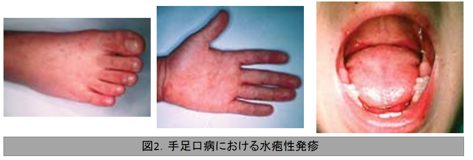 手足口病における水疱性発疹
