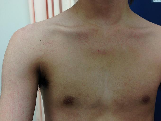 コロナ 皮膚 の 発疹